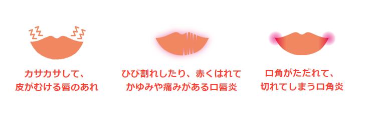 口唇のひびわれ、口唇のただれ、口唇炎、口角炎