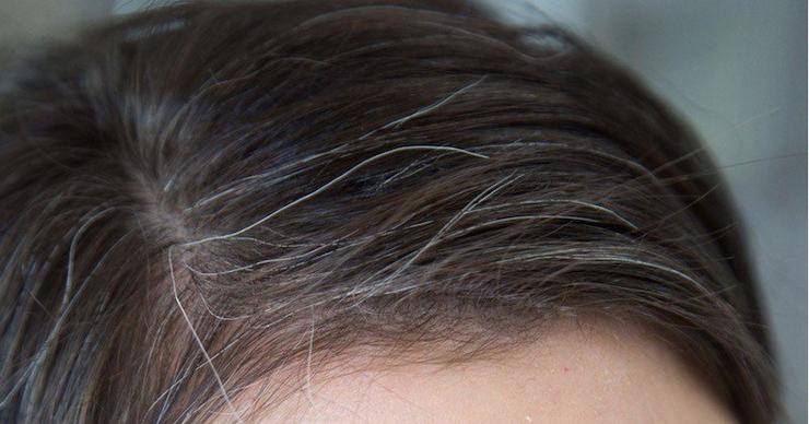 若白髪の原因と予防する方法まとめ