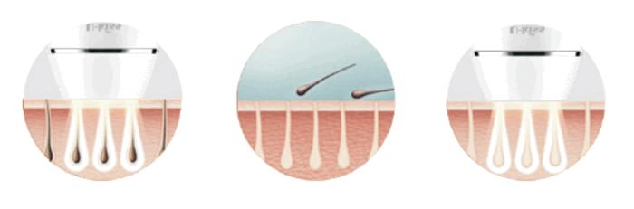 毛穴にフラッシュ照射するイメージ