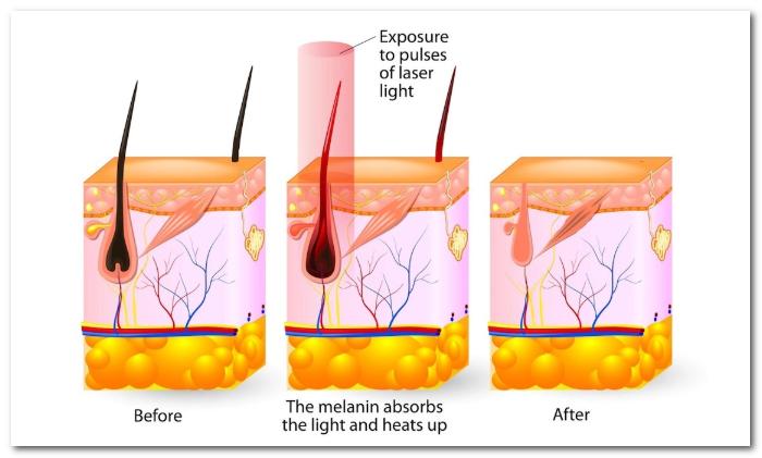 脱毛は毛母細胞と毛乳頭の熱変性によるもの